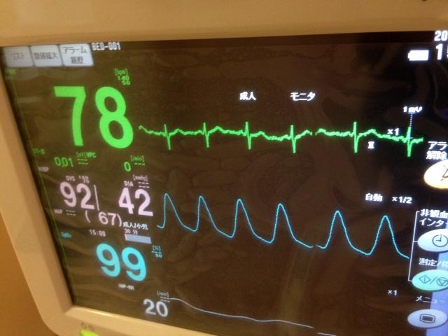 看護必要度 Hファイル A項目 心電図モニター